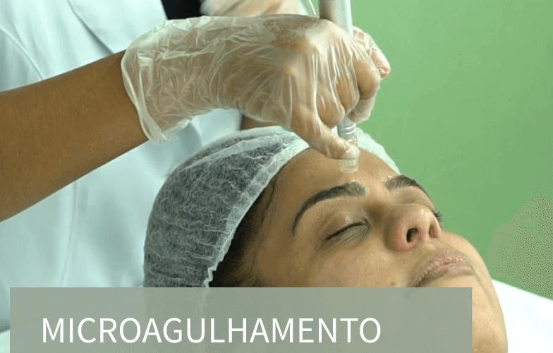 Microagulhamento,-cicatriz-de-acne-e-rugas (1) (1)